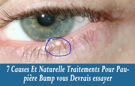 7 causes et naturelle traitements pour paupi re bump vous for Interieur de la bouche blanche