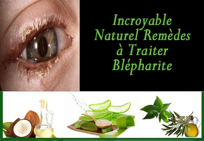 soigner vos yeux naturellement