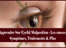 Apprendre Sur Eyelid Malposition - Les causes, Symptômes, Traitements & Plus
