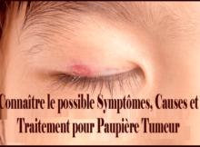 Connaître le possible Symptômes, Causes et Traitement pour Paupière Tumeur