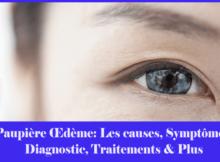 Paupière Œdème- Les causes, Symptômes, Diagnostic, Traitements & Plus