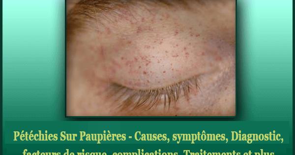 Pétéchies Sur Paupières - Causes, symptômes, Diagnostic, facteurs de risque, complications, Traitements et plus