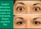 Paupière Rétraction- Symptômes, causes, Les traitements, Risques associés & Plus